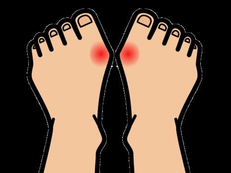 親指の付け根の関節が痛む痛風
