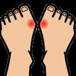 激しい関節痛を起こす痛風の原因と対策 – 乳製品が効果