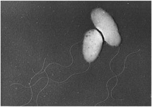 腸炎ビブリオ(ビブリオ・パラヘモリティカス)の拡大写真